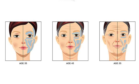 Pluryal Injecatbles, premijum Hijaluron fileri i mezoterapija, elastičnost kože - MD Beauty Mikodental